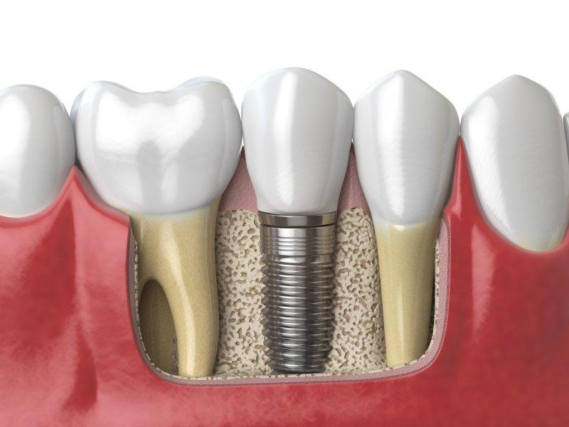 Illustration of dental implants in Montrose