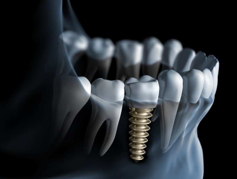 Dental implant digital illustration