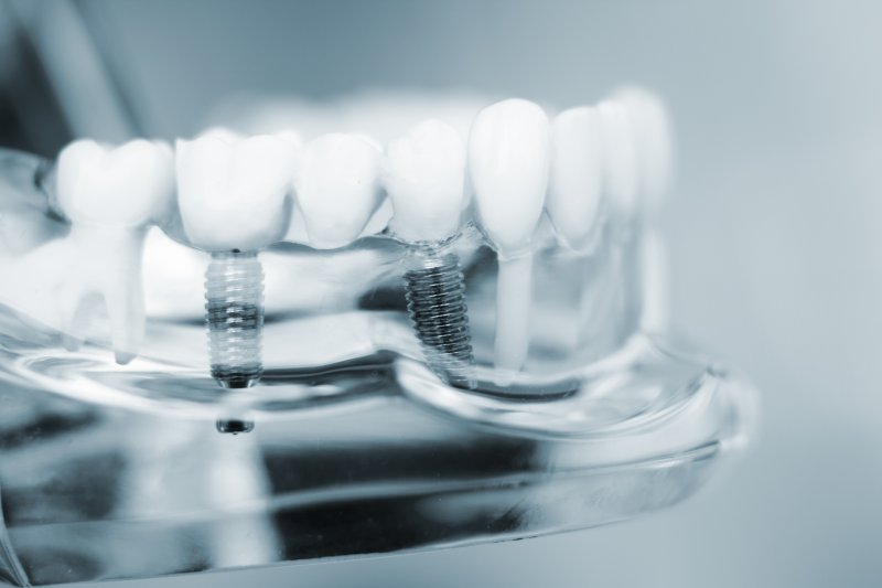 a mouth mold that contains an implant bridge in Houston
