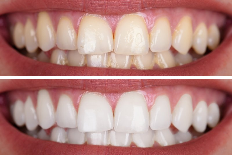 a before and after image of a person who recently had their teeth whitened