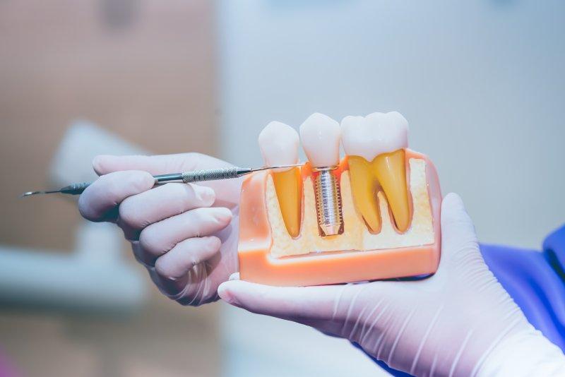 dentist explaining dental implant model
